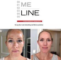 meline3